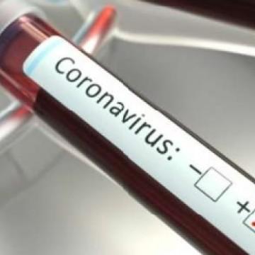 Covid-19: PE bate recorde de óbitos diários