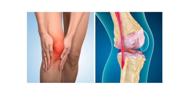 É um tipo de artrite que ocorre quando o tecido flexível nas extremidades dos ossos se desgasta