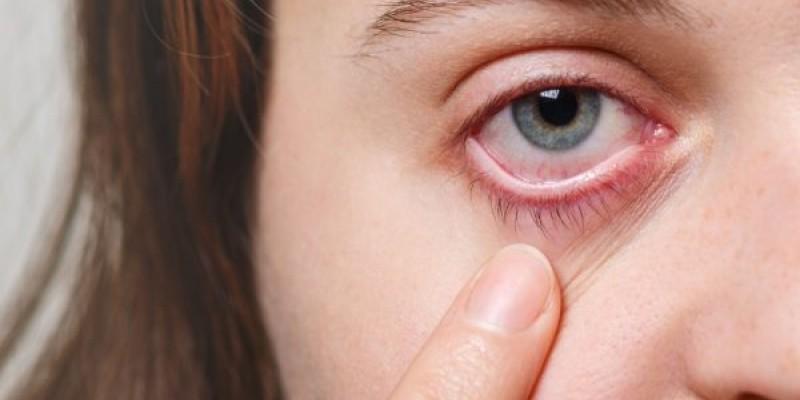 Médico explica que os pacientes contaminados apresentam conjuntivite, além dos problemas respiratórios