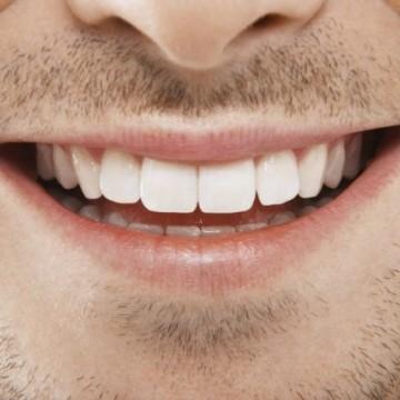 Implante dentário é o procedimento mais adequado para a ausência dos dentes