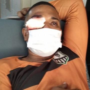 PM que atingiu olho de homem com bala de borracha em protesto no Recife é afastado