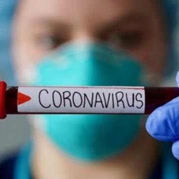 Covid-19: casos semanais crescem e mortes oscilam, avalia ministério