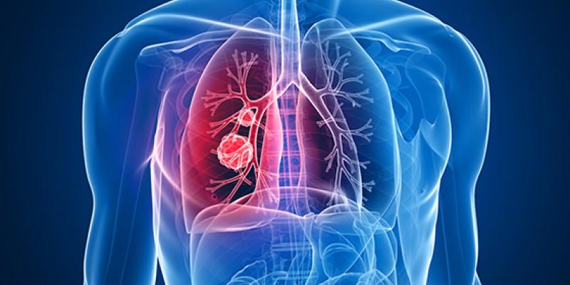 O médico pneumologista, Dr.Amaro Capistrano, esclarece sobre o problema