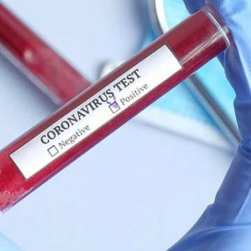 Aprovados primeiros testes rápidos para Covid-19