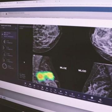 HCP conta com inteligência artificial para ter diagnóstico precoce do câncer de mama