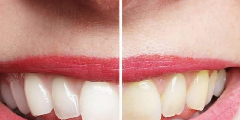 Busca pelos laminados cerâmicos ultrafinos tem aumentado pelos pacientes que desejam ter o sorriso perfeito