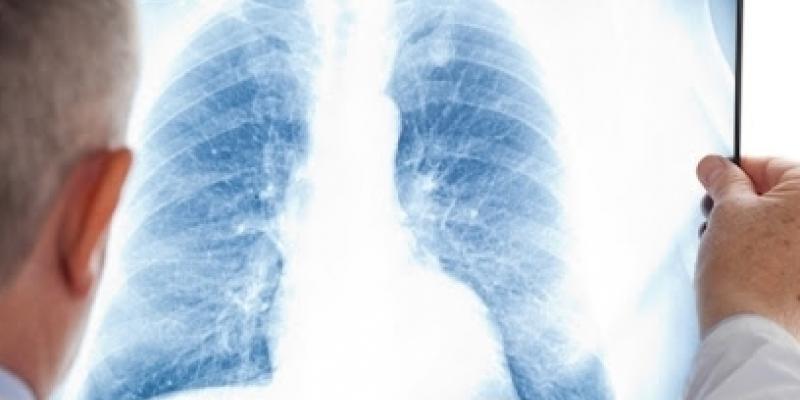Internações por Síndrome Respiratória Aguda grave subiram 400% acima da média no estado