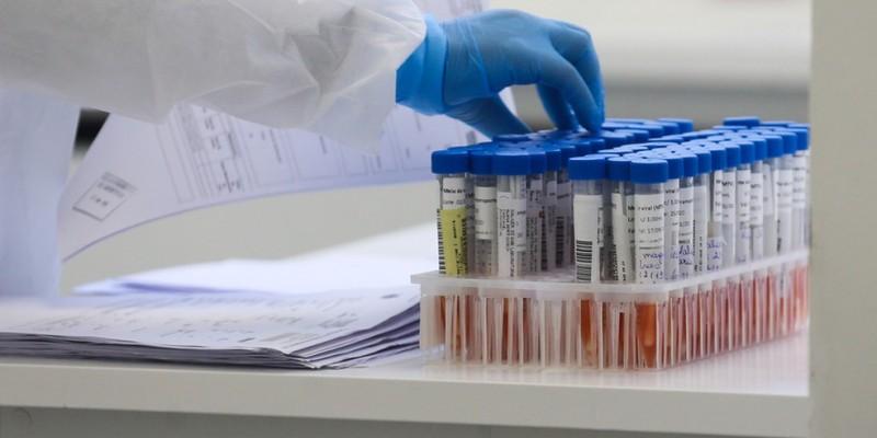 Subiu para 22 o número de registros de pacientes com a enfermidade no Estado, incluindo duas mortes desde o início da pandemia em março