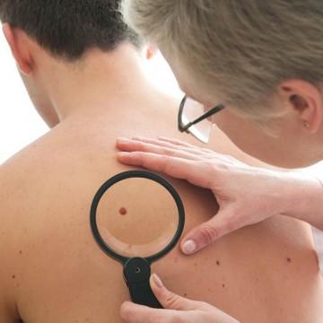 Câncer de pele corresponde a 27% de todos os tumores malignos no país