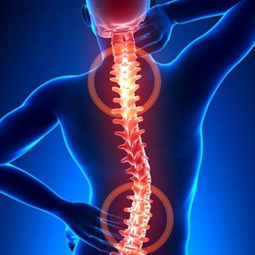 Saiba como evitar fraturas da coluna vertebral
