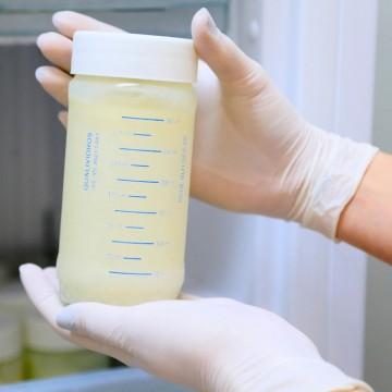Com estoques em alerta, Pernambuco reforça a importância da doação de leite humano