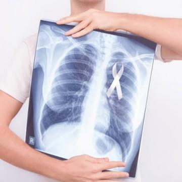 Adenocarcinoma é o subtipo de câncer de pulmão mais frequente do mundo