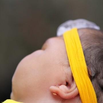 Bactérias podem ter contribuído para casos de microcefalia em PE
