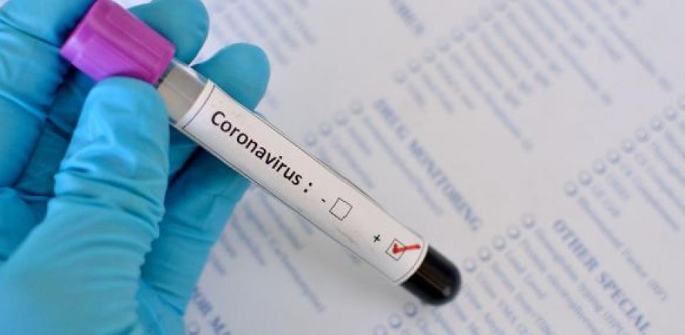 Pernambuco registra 1.023 novos casos de coronavírus