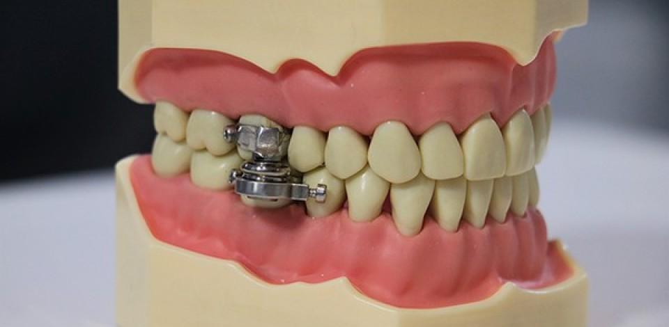 Dispositivo de emagrecimento que limita abertura da boca é criticado por profissionais da saúde