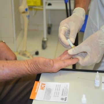 Clínica do Homem do Recife faz teste gratuito de HIV e sífilis