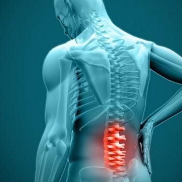 Hérnia de disco: causas, sintomas e tratamentos