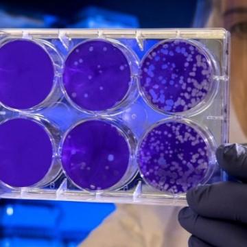 Pernambuco tem 493 novos casos de coronavírus