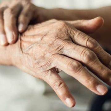 Aproximadamente 1% da população mundial com idade superior a 65 anos tem a doença de Parkinson