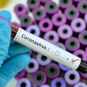 Secretaria de Saúde encaminha aos municípios informações sobre coronavírus
