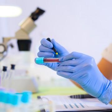 PE amplia número de exames para diagnóstico do novo coronavírus