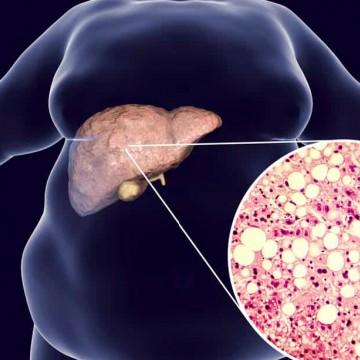 Você cuida do seu fígado?