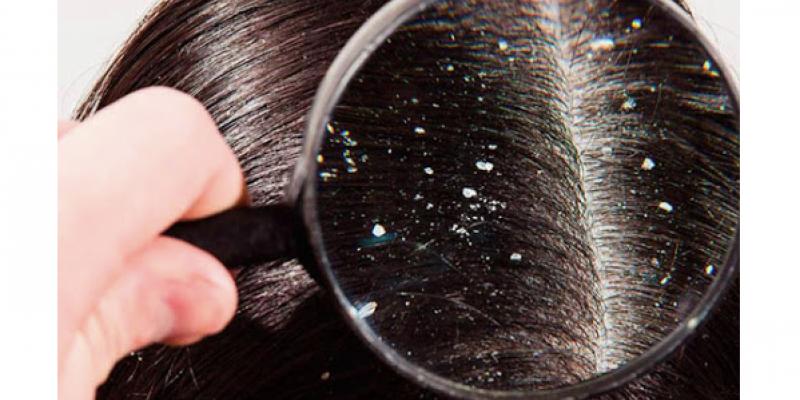 Conhecida também como seborreia a caspa é uma condição da pele que afeta principalmente o couro cabeludo.