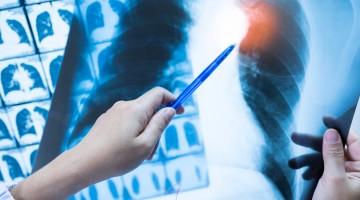 COVID-19: exames de imagem são importantes aliados no combate à doença