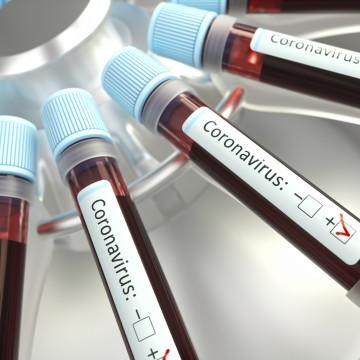 Pernambuco soma 684 casos confirmados do novo coronavírus