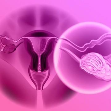 Câncer de ovário: sintomas, causas e tratamento