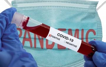 Brasil tem 800 mortes por coronavírus