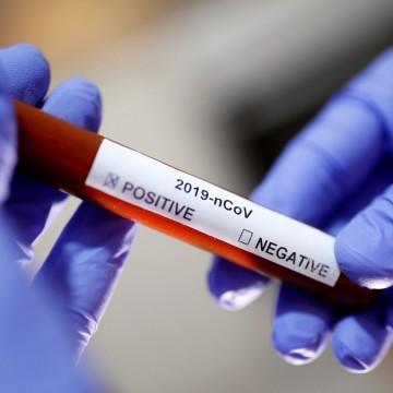 Pernambuco registra 37 casos de coronavírus