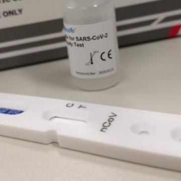Polícia Federal alerta para venda de testes falsos da Covid-19