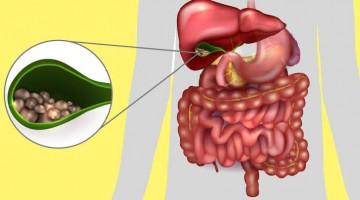 Saiba como prevenir e tratar a pedra na vesícula