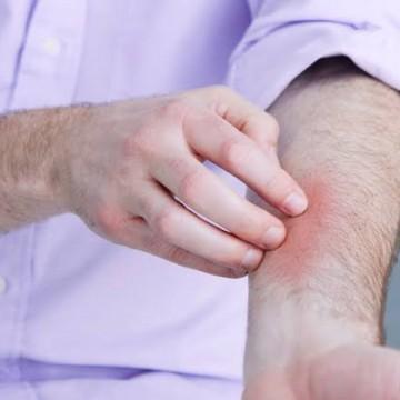 Entenda sobre a doença crônica Psoríase