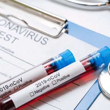 Brasil registra 1.532 mortes por coronavírus