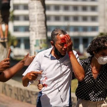Dois homens atingidos pela PM durante protesto no Recife, perdem parte da visão