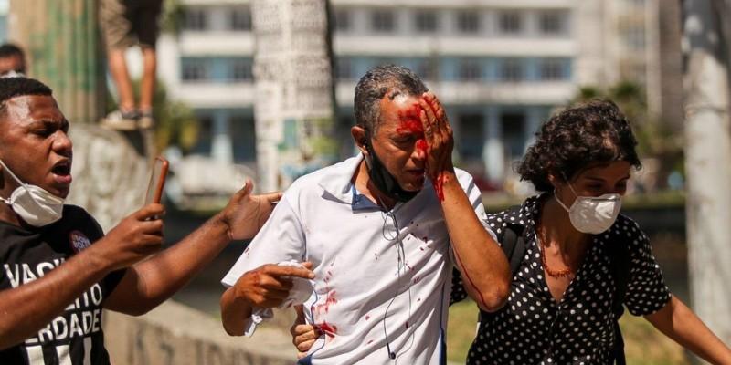 Estado diz que vai indenizar vítimas da ação truculenta da polícia durante ato pacífico contra presidente Bolsonaro