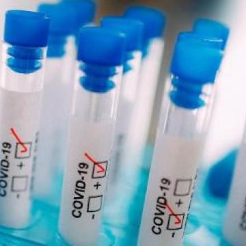 Brasil recebe 500 mil testes para diagnóstico da Covid-19
