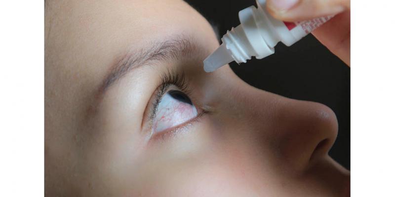 Esse problema é uma inflamação ou infecção da membrana externa do globo ocular e da pálpebra interior