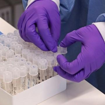 Alfândega do Recife libera com rapidez produtos médico-hospitalares