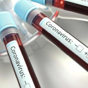 Covid-19: Pernambuco tem quase nove mil infectados