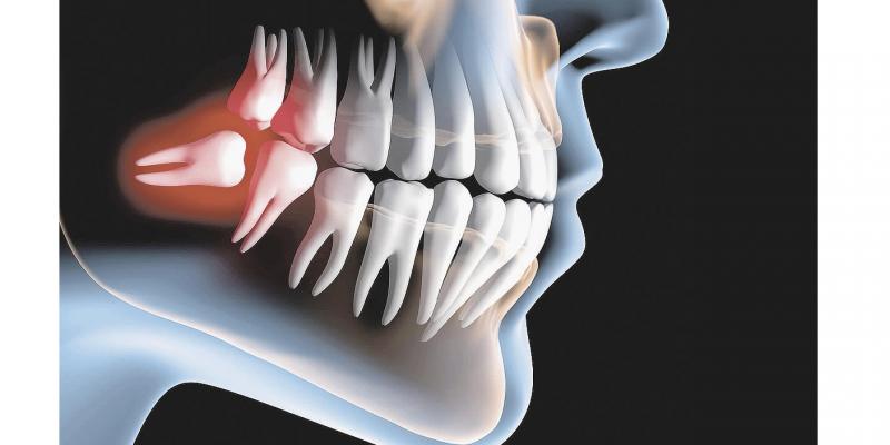 Terceiro molar mais conhecido como