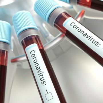 Prefeitura de Caruaru adota novas medidas para conter o coronavírus