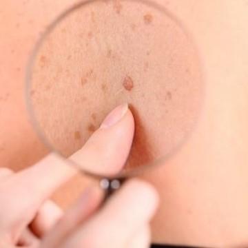 Dermatologista alerta sobre Melanoma