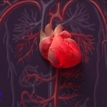 A cada 90 segundos, uma pessoa morre por doença cardiovascular