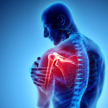 CBN Saúde: Dor no ombro
