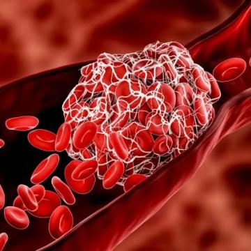 A trombose costuma surgir na perna, mas pode levar  a complicações no corpo todo.