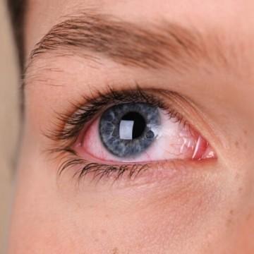 Coronavírus pode atacar as vias respiratórias através do canal lacrimal