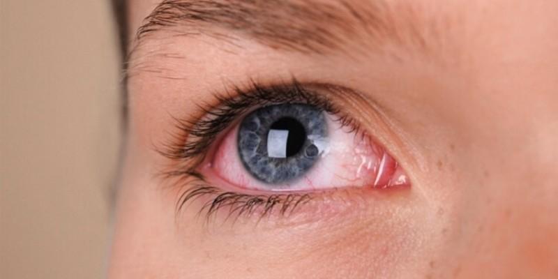 Oftalmologista explica que é preciso haver um somatório de sintomas para poder suspeitar